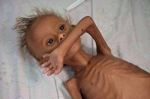 اطفال اليمن الحديدة